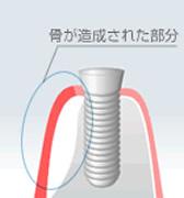 GBR(骨再生) のイメージ